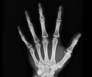 image d'une radiographie